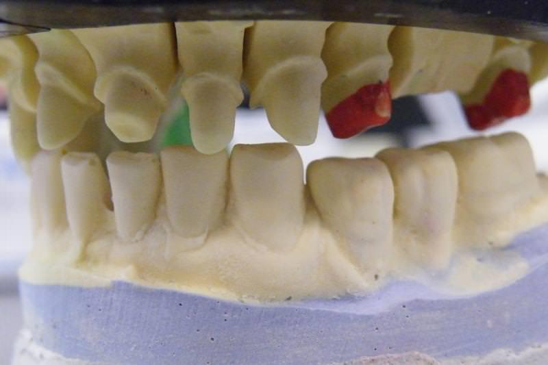 cirkon, debreceni fogászat, dentland, fogászat, fogászat debrecen, fogpótlás, kerámia fogpótlás