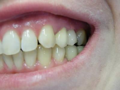 altatásos fogászat, cirkon, debrecen, debreceni fogászat, fog műcsonk, fogászati implantáció, fogpótlás, műcsonk