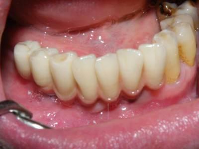 cirkonoxid, debrecen, debreceni fogászat, fogászat, fogimplant, híd, implantáció