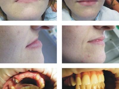 debreceni fogászat, dentland, fog implant, fogászat debrecen, foggerinc helyreállítás, fogpótlás, implantáció