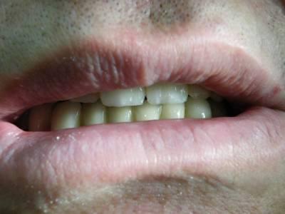 debrecen, debreceni fogászat, dentland, fémkerámia fogpótlás, fix fogpótlás, fogászat, kivehető fogpótlás