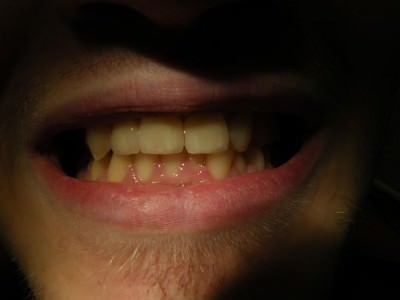 debreceni fogászat, dentland, fémmentes korona, fog korona, fogászat debrecen, kerámia korona, korona