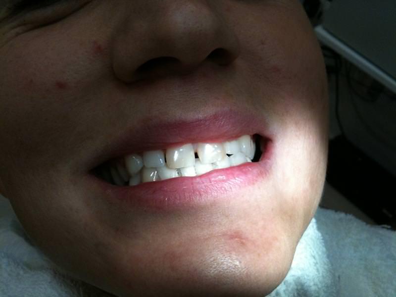 debreceni fogászat, dentland, fémmentes fogászat, fog korona, fogászat debrecen, korona, üvegkerámia, üvegkerámia korona