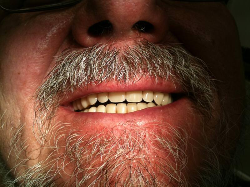 debrecen, debreceni fogászat, dentland, fémmentes implantáció, fog implant, fogászat, fogsor, fogsor pótlás, implant