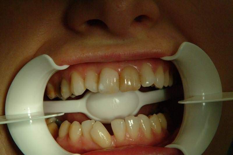 debrecen, debreceni fogászat, dentland, első fogak, fogászat, fogkorona, frontfogak, korona, üvegkerámia