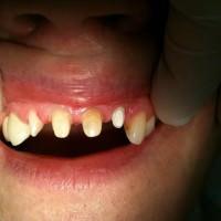 azonnali fogpótlás, azonnali implantáció, debreceni fogászat, dentland, fog implantátum, fogászat debrecen, fogászati implantátum, fogbeültetés, fogpótlás, implantátum