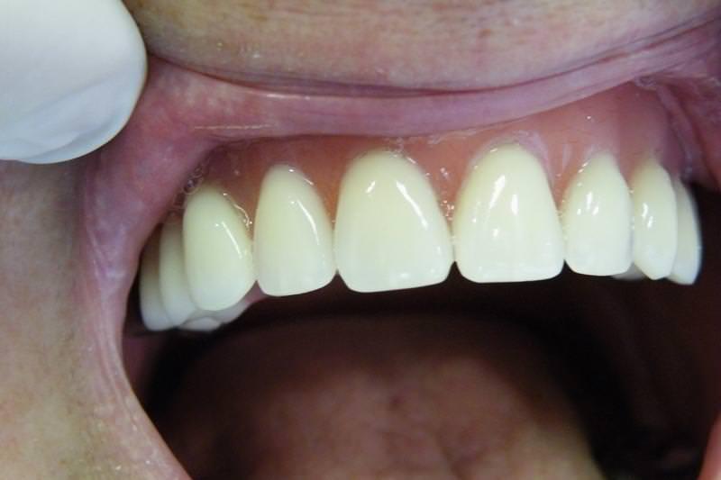 debreceni fogászat, dentland, felső fogsor pótlás, fog implant, fogászat, fogászat debrecen, fogpótlás, fogsor, implant