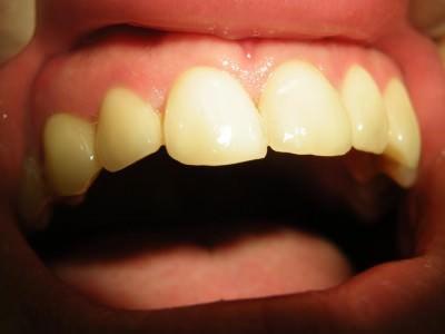 debrecen, debreceni fogászat, dentland, fémmentes fogászat, fémmentes korona, fogászat, korona, szuvas fogak, üvegkerámia
