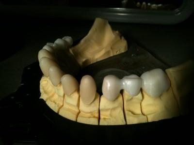 debreceni fogászat, debreceni fogpótlás, dentland, fémmentes fogpótlás, fémmentes fogsor, fogpótlás, fogsor pótlás, teljes fogsor