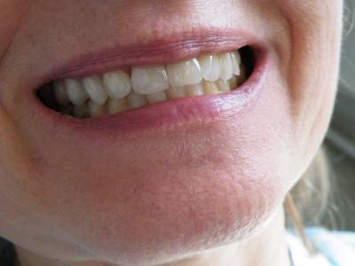 debreceni fogászat, dentland, fog korona, korona, üvegkerámia korona