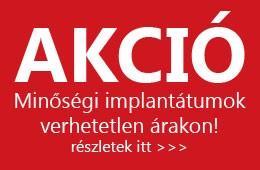 dentland_fogaszat_debrecen_implantatum_akcio